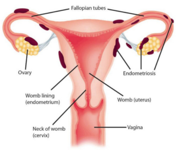 Endometriosis on female reproductive organs